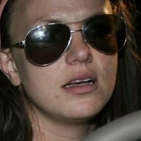 Britney Spears avec acné et visage boursoufflé