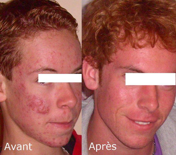 Comment guérir l'acné sans Roaccutane : L'histoire de Gary