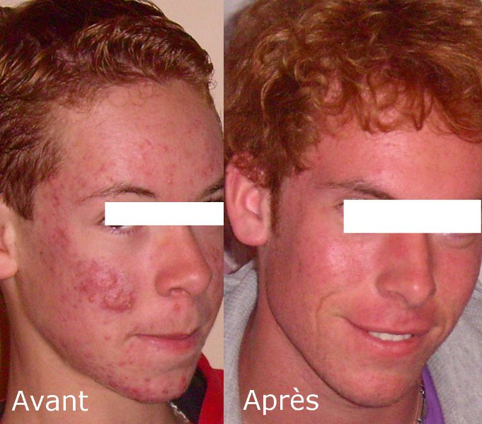 Roaccutane avant apres - CanadaDrugs: Canadian Pharmacy Online