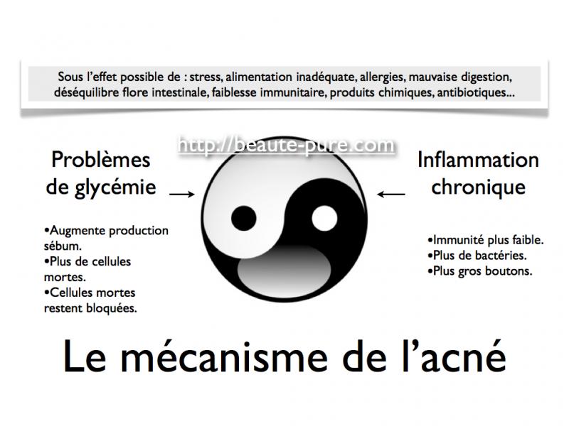 Le mécanisme de l'acné