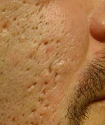 """cicatrices acné """"pic de glace"""""""