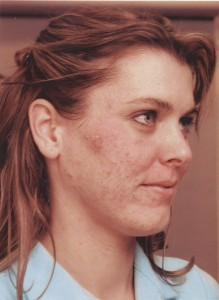 Kristen acné avant