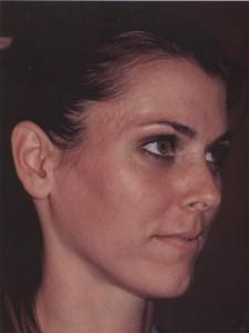 Kristen acné après