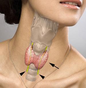 prolactine élevée et thyroide