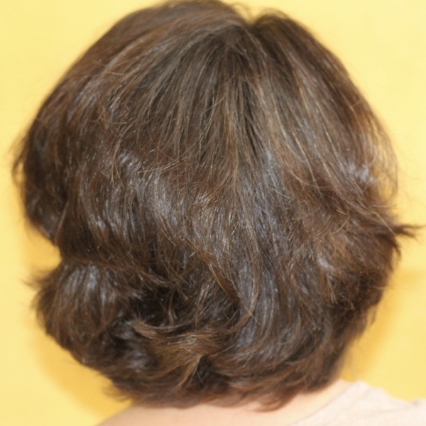 AcnГ© sur la tГЄte aprГЁs la teinture des cheveux